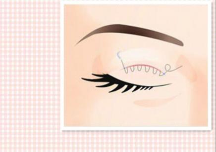 南昌微整形培训双眼皮分哪些类